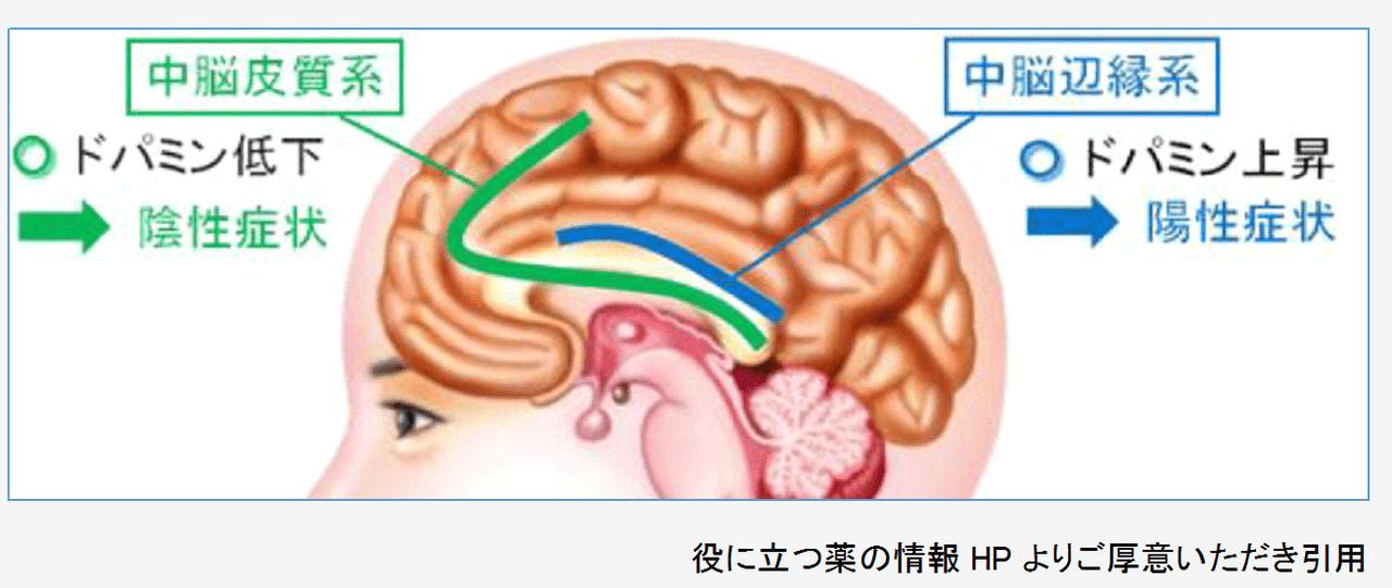 ドパミンと統合失調症の症状の関係をみてみましょう。