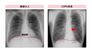 COPDの胸部レントゲン