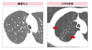 COPD胸部CT