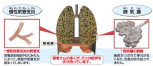 肺気腫と気管支炎