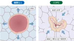 COPDの病理画像