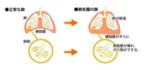 肺か膨張の写真